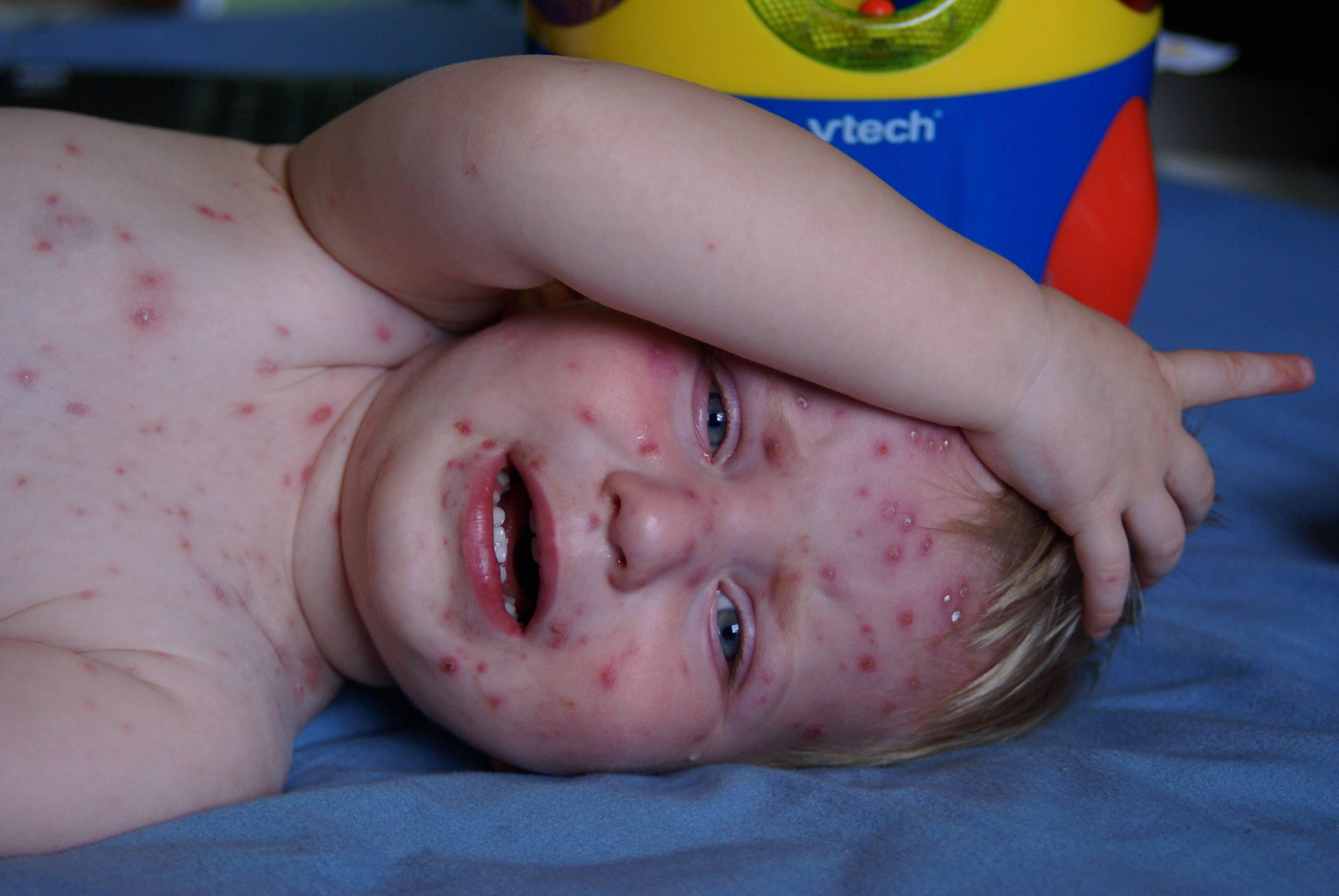 vaksinasi untuk cacar air pada anak